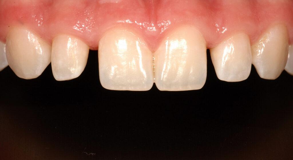 Comprehensive Orthodontic